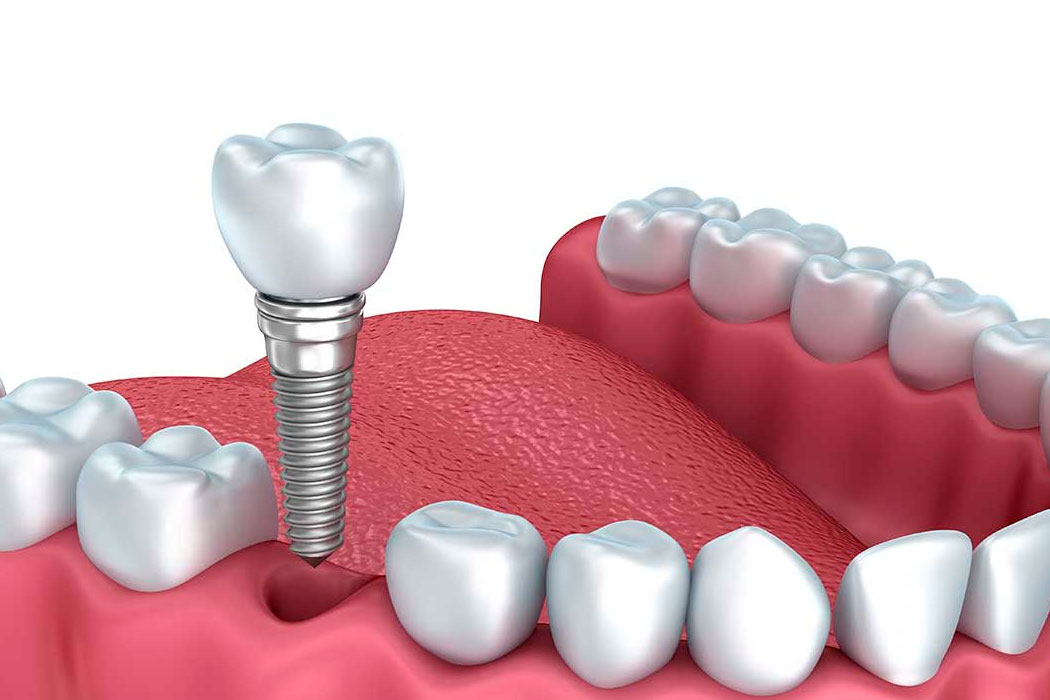 Dental Implants Can Change Your Life! Enjoy Eating Again!